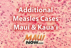 Additional measles cases confirmed on Maui & Kauaʻi.  Background image: Histopathology of measles pneumonia. Giant cell with intracytoplasmic inclusions. CDC image / Dr. Edwin P. Ewing, Jr.
