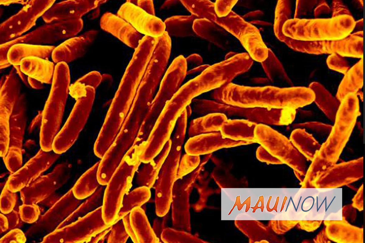 Report: Tuberculosis Could be Eradicated in 26 Years