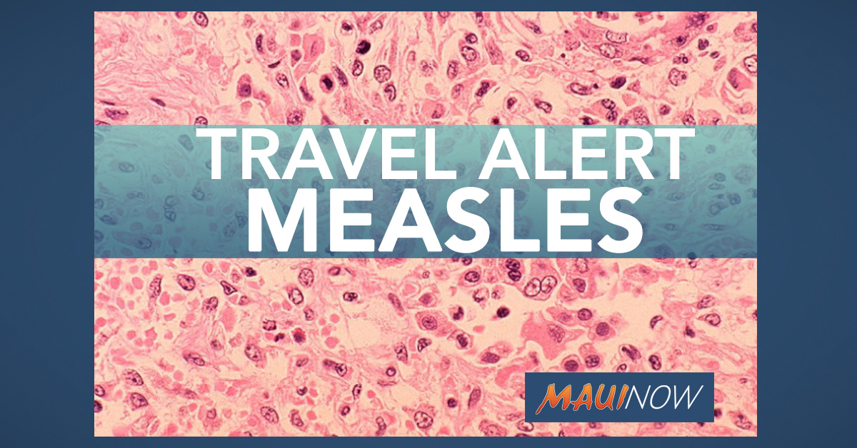 Hawai'i Health Department Issues Traveler Alert for Measles